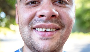 An up-close image of a young man with a chipped tooth in Midland on the top arch of teeth
