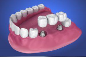 implant-retained bridge