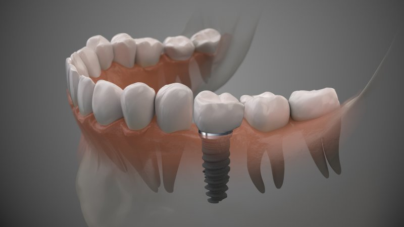a digital image of a lower arch of teeth and a dental implant between two natural teeth